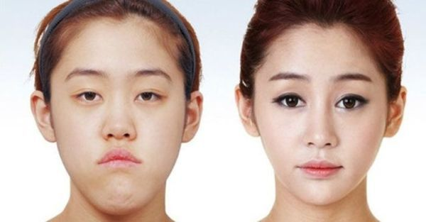 korean plastic surgery - possibly racist